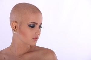 טיפולים כימותרפיים בישראל